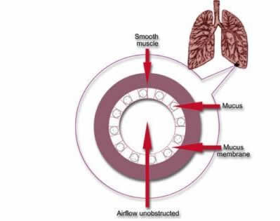 Your lungs an asthma attack hse cross section of normal bronchiole ccuart Images