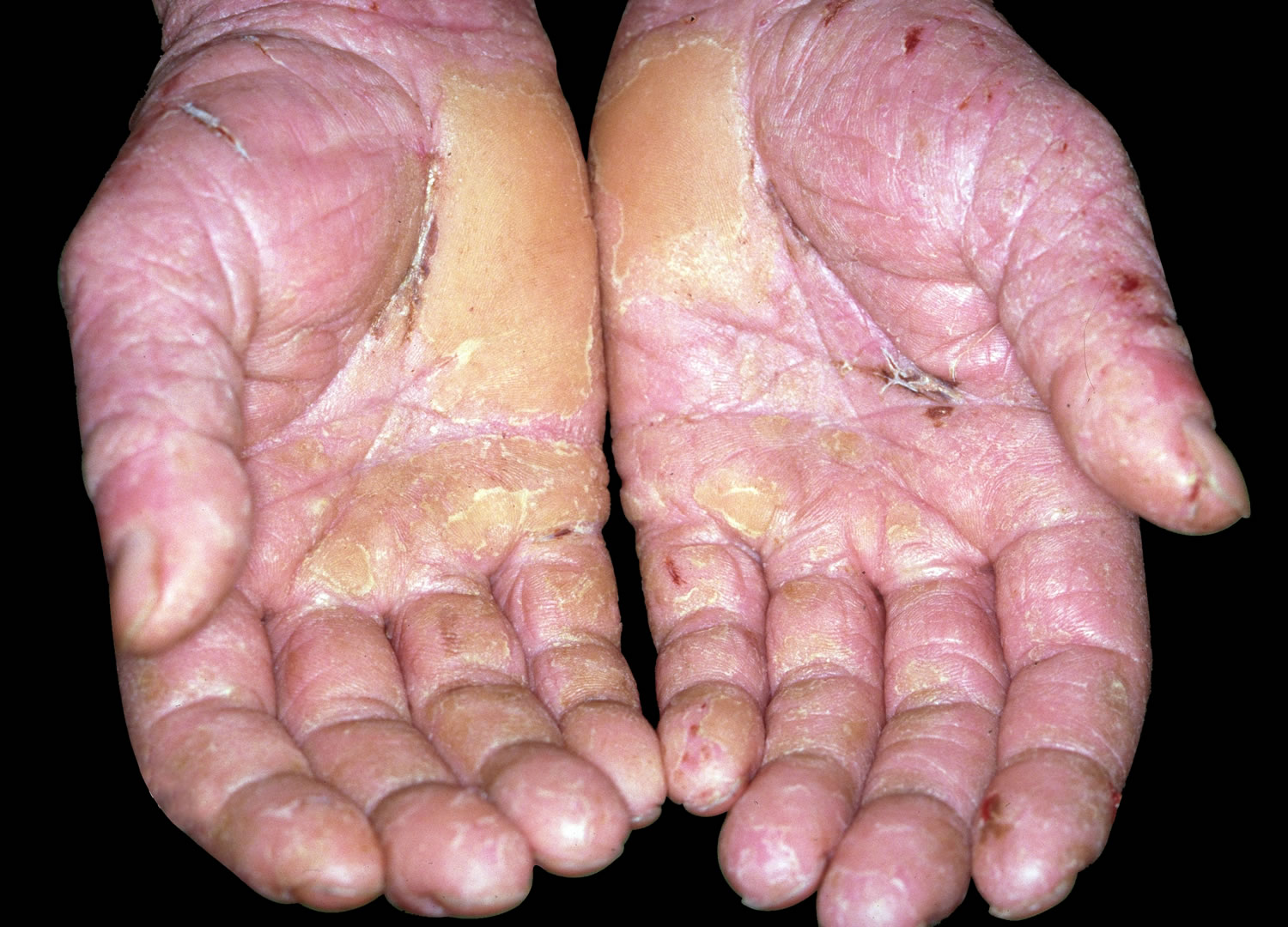 Skin Disease On Hands