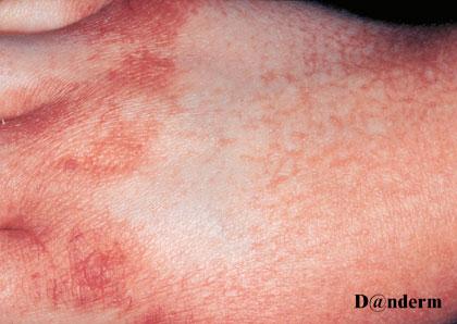 contact dermatitis on hands pictures
